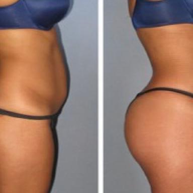 Brazilian Butt Lift en Lipolisis Femenina de Alta Definición Lipomarcación Femenina.