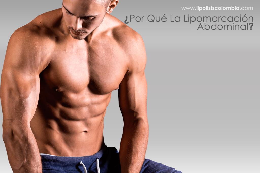 ¿Por qué Cirugía Definición Abdominal Hombres ?