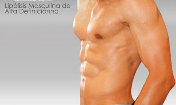 Marcación abdominal Masculina