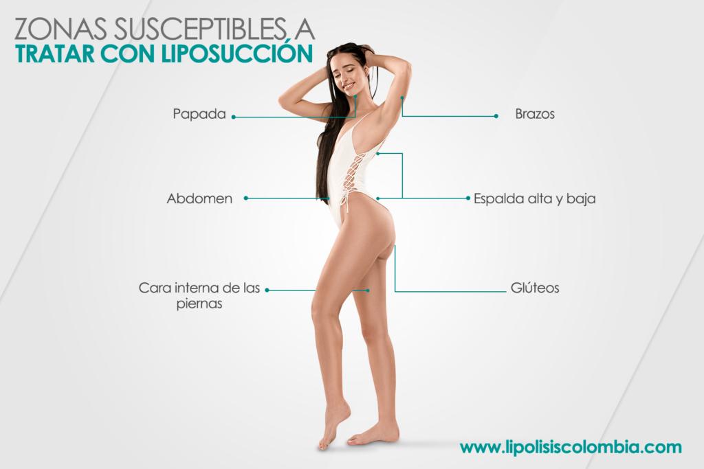 Liposucción Bogotá