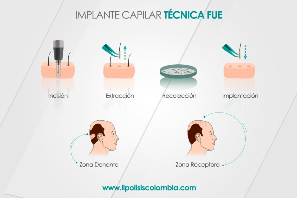 Técnica FUE en Implante Capilar Bogotá